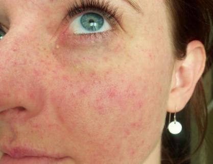 Как избавиться от капилляров на лице
