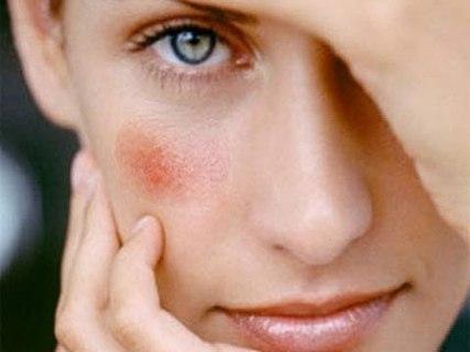 Причины появления расширенных сосудов на лице